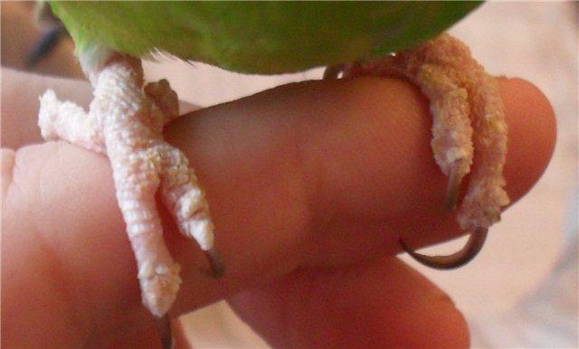 Что можно есть при болезнях поджелудочной железы при обострениях